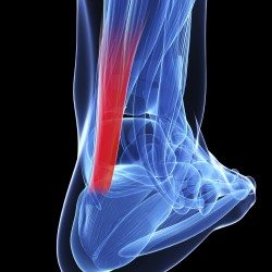 Prolotherapy And PRP Helps Achilles Tendonopathy